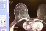 Biomarc - Magnetic Resonance - MRI
